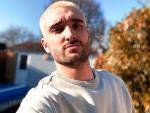 The Wanted Singer Tom Parker Tells Fans He has Terminal Brain Tumor